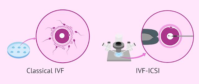 IVF biasa dan IVF dengan ICSI