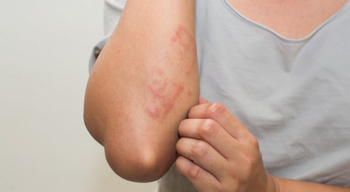 Signes de peau sensible qui ont besoin d'aide