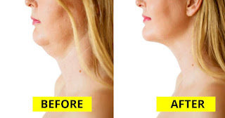 3 Effective Exercises To Lose Your Neck And Face Fat