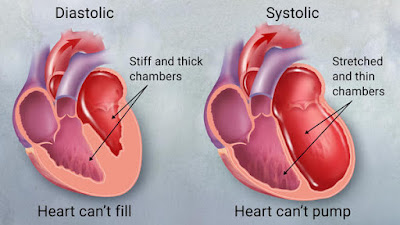 Congestive_Heart_Failure