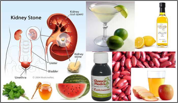 Day Night Health Book Kidney Stones Precautions And Home Remedies