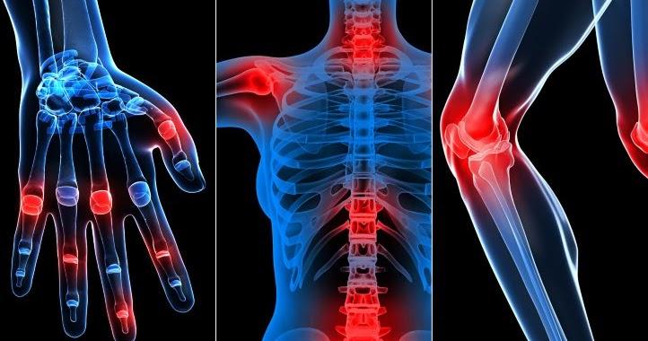 artroza articulației genunchiului din etapa a treia leziune la genunchiul drept