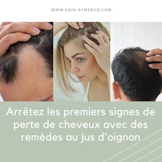 Arrêtez les premiers signes de perte de cheveux avec des remèdes au jus d'oignon