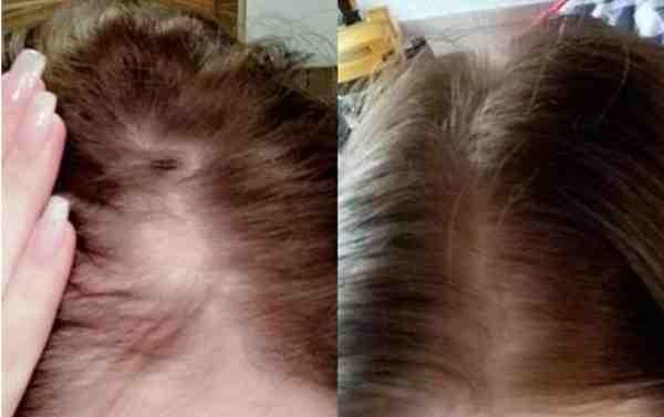 افضل زيت لانبات وتكثيف الشعر