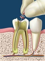 dolor endodoncia