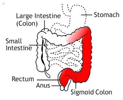 ulcerative colitis causes