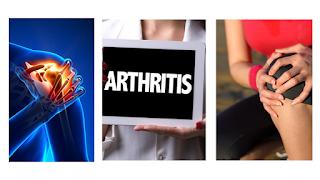 Combattre la douleur arthritique