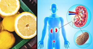 Cleanse Your Kidneys With Lemon