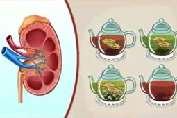 4 minuman yang membantu membersihkan ginjal dan menyaring darah
