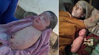 Aneh Tapi Nyata, Bayi Lahir Tanpa Kedua Tangan Dan Kedua Kaki, Dokter Bingung Pertama Kali Terjadi