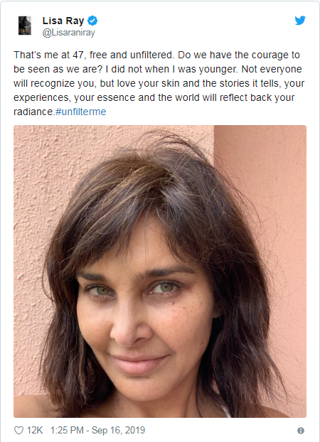 Lisa Ray Shares Her Unfiltered Photo On Social Media