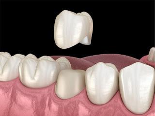 اسعار تلبيس الاسنان