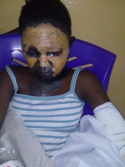 Little girl suffers severe burns after transformer explodes at Lagos bus-stop (graphic)