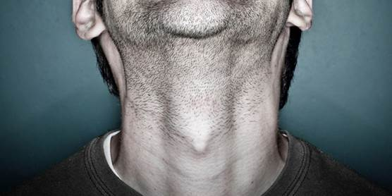 Tireoide masculina