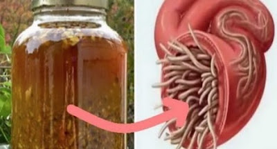 Best #Natural #Antibiotic That Kills Any Internal #Parasite And #Bacteria [#Natural #Remedy]