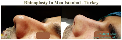 Rhinoplasty In Men,Rhinoplasty In Istanbul,Rhinoplasty In Turkey, Nose Job For Male, Male Nose Job in Turkey
