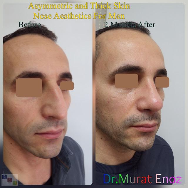 Rhinoplasty for male in Istanbul - Men's nose aesthetic in Turkey - Male rhinoplasty