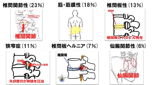 腰痛の原因順 神戸やすらぎ訪問マッサージ