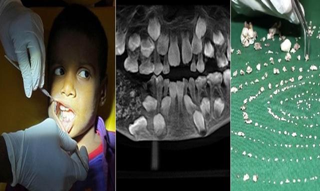 Dokter Temukan 500 Gigi dibagian Rahang Bocah - cnn