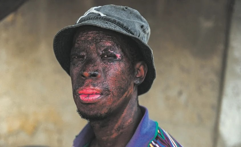 Scarred Trying To Save Kids From A Shack Fire