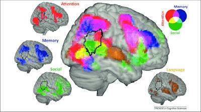 Temporalparietal Junction function