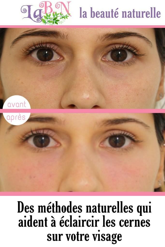 Des méthodes naturelles qui aident à éclaircir les cernes sur votre visage