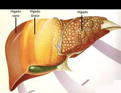 cáncer de hígado como prevenirlo