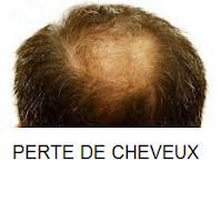 Traitements de perte de cheveux