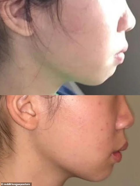 mewing antes e depois 1