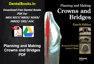 Planning and Making Crowns and Bridges PDF