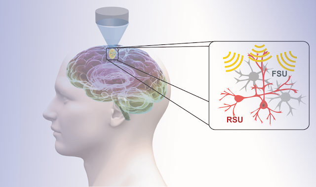 Forget Brain Surgery: Ultrasound Therapies Could Help Treat the Brain