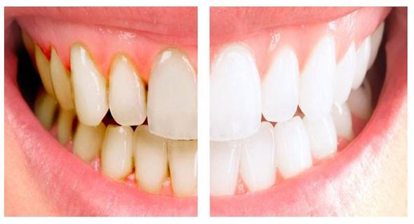 Tips Memutihkan Gigi Dengan Cara Alami