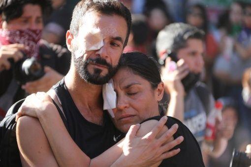 Víctimas de trauma ocular en Chile exigen a Gobierno de Piñera una reparación efectiva