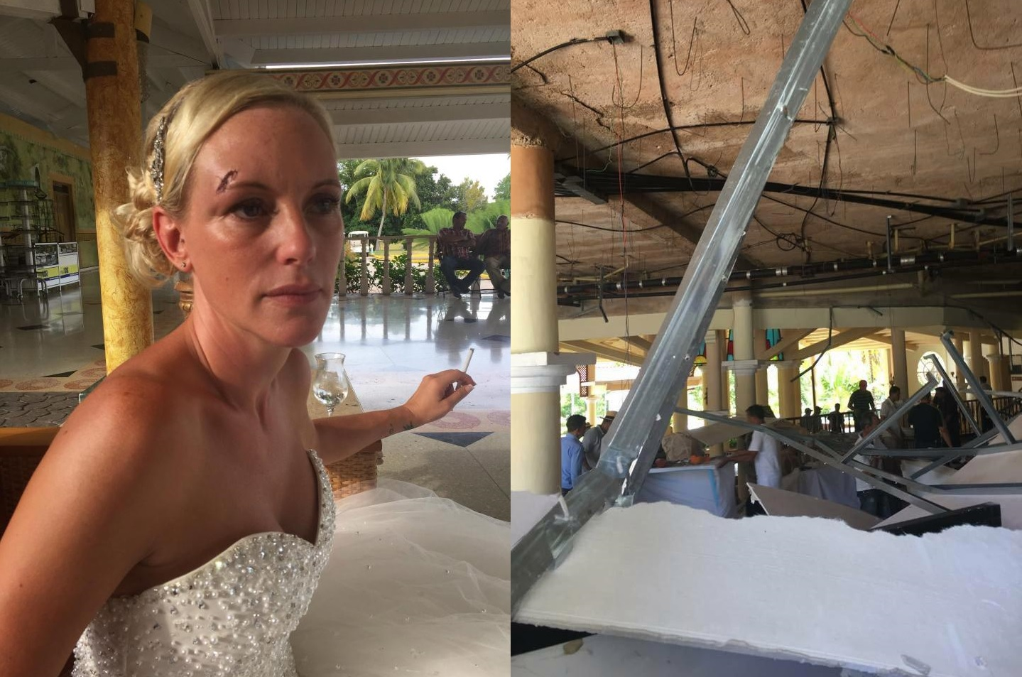 The Sarah And John Wenham Were Both Injured Day Before Wedding Of Their Dreams Leaving Bride Permanently Scarred Groom With Broken Ribs