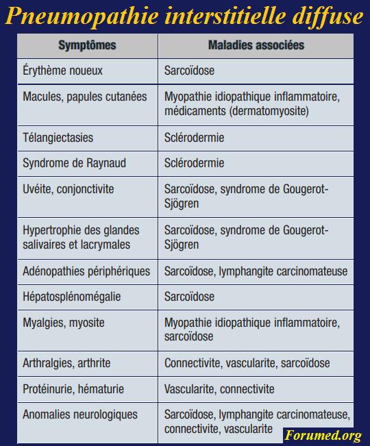 Signes cliniques à rechercher lors de l'enquête étiologique d'une pneumopathie interstitielle diffuse