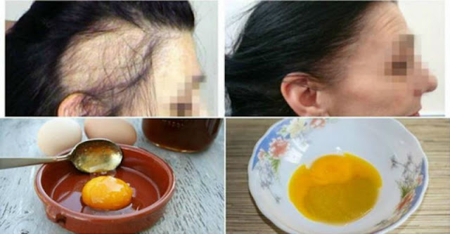 3-Ingredient Miracle Recipe For Fastest Hair Growth (VIDEO)!