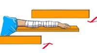 Langkah-langkah pertolongan kecelakaan di jalan