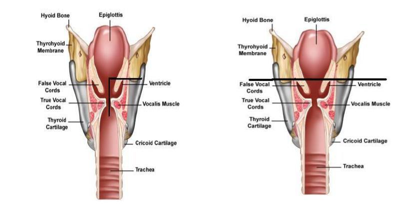 cancer-larynx-2