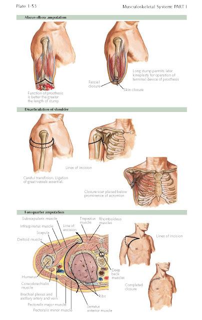 Amputation Of Upper Arm And Shoulder