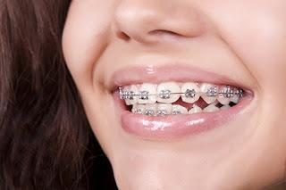 Niềng răng có hết móm không? Những điều cần lưu ý