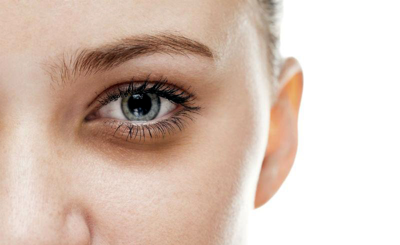 How to Treat Dark Circles, Under-Eye Puffiness, and Lines