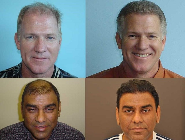 top hair restoration techniques