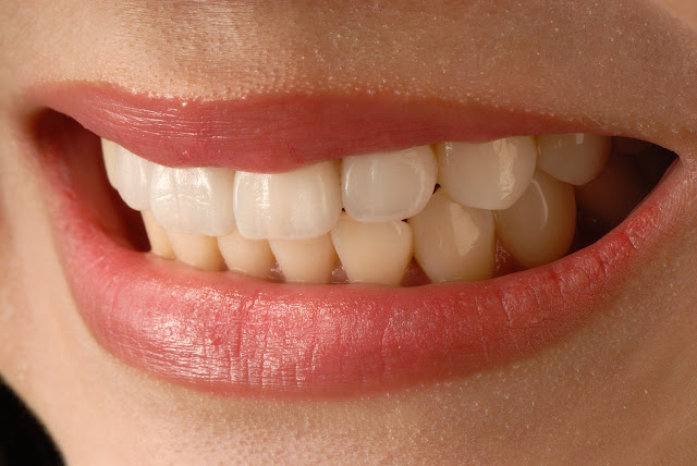 Are Porcelain Veneers as Strong as Real Teeth?