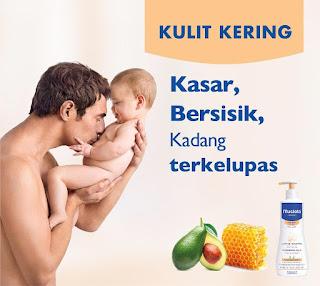 review mustela untuk mengatasi biang keringat pada bayi