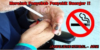 http://arumherbal30.blogspot.co.id/2018/03/obat-herbal-untuk-penyakit-buerger.html