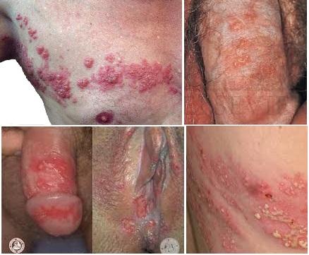 cara mengatasi penyakit herpes