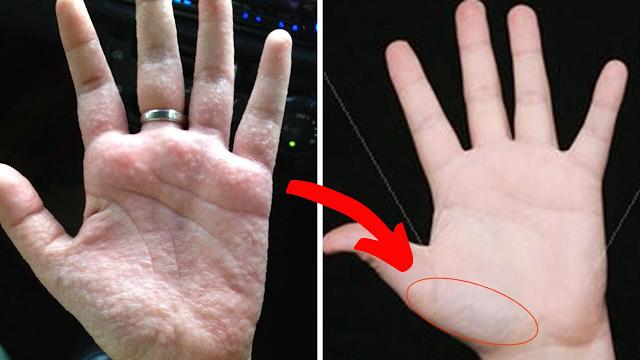Tangan Gatal Kayak gini? Gak Perlu Sibuk Garuk Sana Sini, Ini Dia Cara Ilangin Bintik-bintik Lepuhan Kecil Di Tangan!