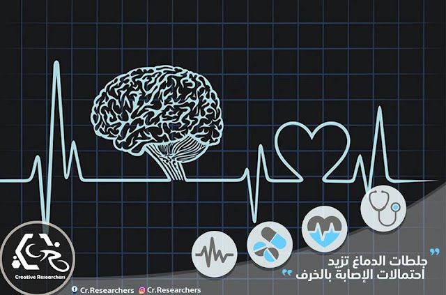 جلطات الدماغ تزيد احتمالات الإصابة بالخرف
