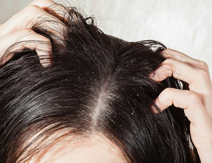 ACV to fight hair dandruff