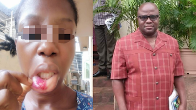 Lady Shares Disturbing Photos Of Injuries, Her Father Inflicted On Her Mum (Photos)
